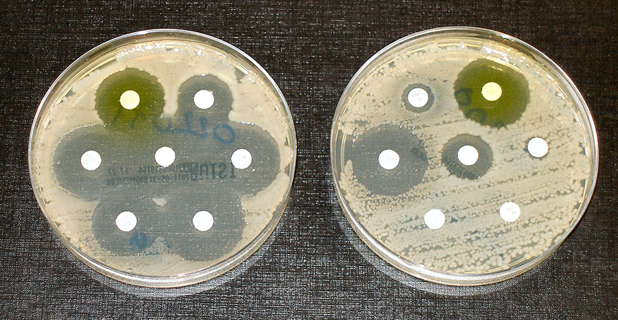EMF bacteria how to test for antibiotic resistance